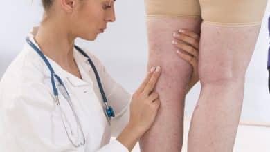 Photo of الدوالي أثناء الحمل : لماذا تحدث وما أفضل العلاجات المتاحة لها؟