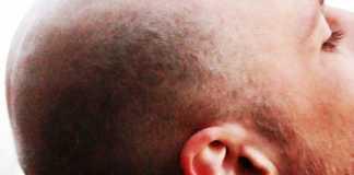 الصلع و تساقط الشعر