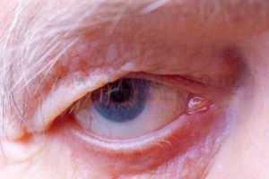 الزهايمر عبارة عن مرض يصيب كبار السن