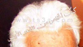التخلص من الشعر الابيض وعلاج شيب الشعر