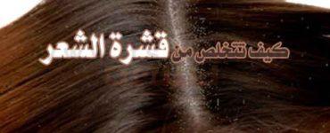 علاج القشرة كيف تتخلص من قشرة الشعر