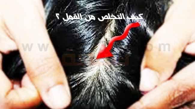 علاج القمل والصيبان وكيف التخلص من القمل