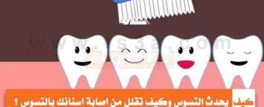 كيف يحدث التسوس وكيف تقلل من اصابة اسنانك بالتسوس