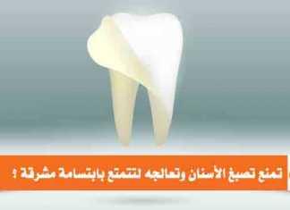كيف تمنع تصبغ الأسنان
