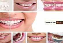 كيف تتعامل مع تقويم الأسنان