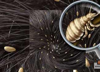 التخلص من حشرات الرأس