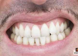 صرير الأسنان