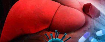 الإصابة بفيروسات الكبد