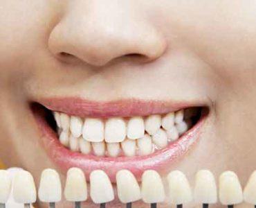 لون الأسنان
