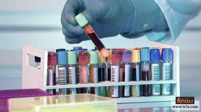 هل تواظب على القيام بالفحوصات الدورية الوقائية في المستشفى؟