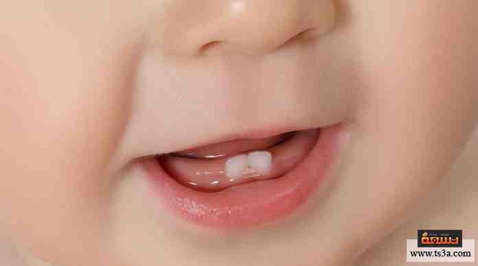 تساقط الأسنان