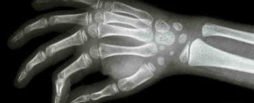 الأشعة السينية