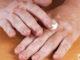 علاج مرض البهاق