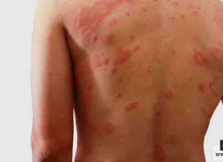 الإكزيما الجلدية