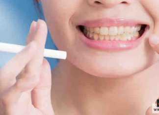التدخين على الأسنان