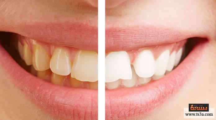 جمال الأسنان