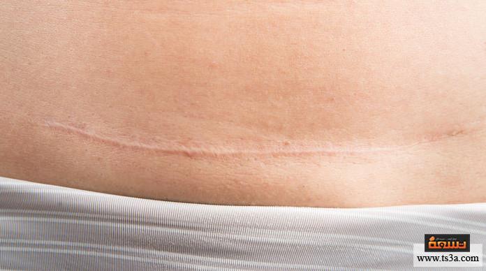 آثار الولادة القيصرية نصائح للتخلص من آثار الولادة القيصرية