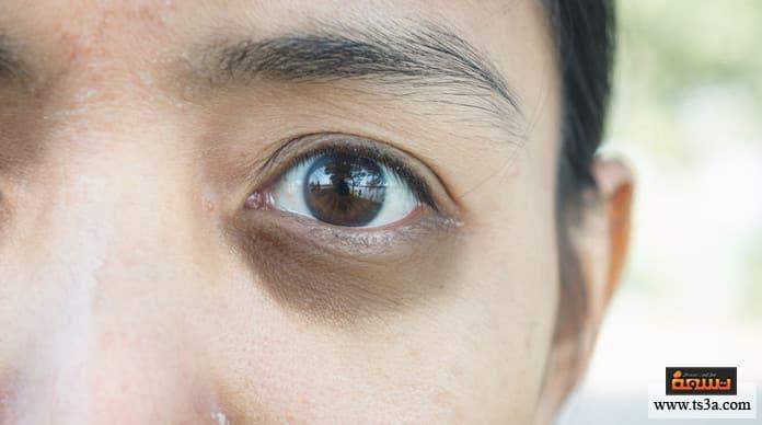 إبراز العينين إزالة الهالات السوداء