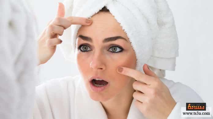 البقع البنية علاج البقع البنية على الوجه بالأعشاب