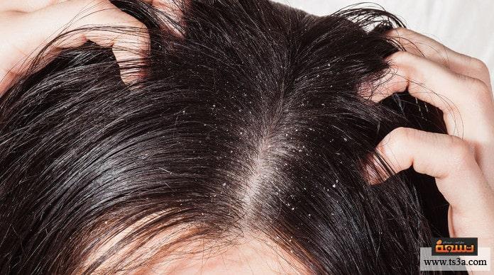 قشرة الشعر الدهني
