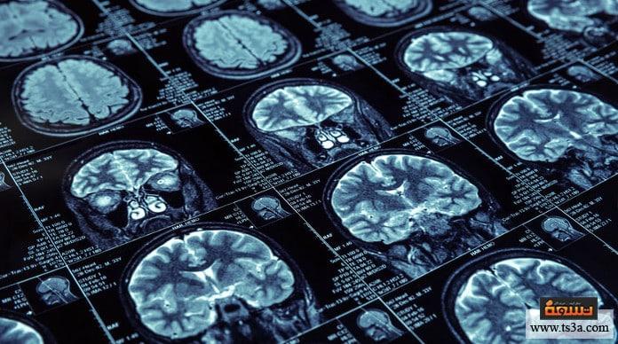 تأثير المغناطيسية على الجسد تأثير المغناطيس على الدماغ