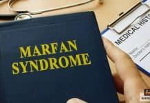 متلازمة مارفان