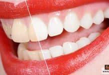 تبييض الأسنان بالزوم