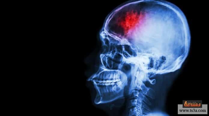 التهاب الدماغ التهاب الدماغ عند الأطفال
