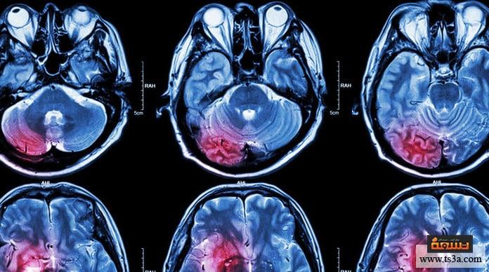 التهاب الدماغ التهاب الدماغ (encephalitis)
