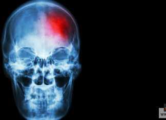 التهاب الدماغ