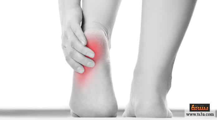 الشوكة العظمية الأسباب الأكثر شيوعًا للإصابة بمسمار القدم