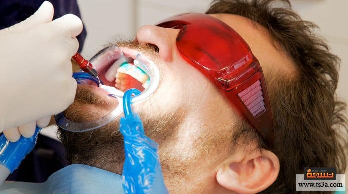 تبييض الأسنان بالأشعة آلية تنفيذ التبييض بالأشعة