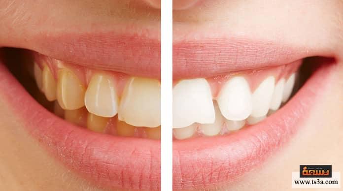 تبييض الأسنان بالأشعة