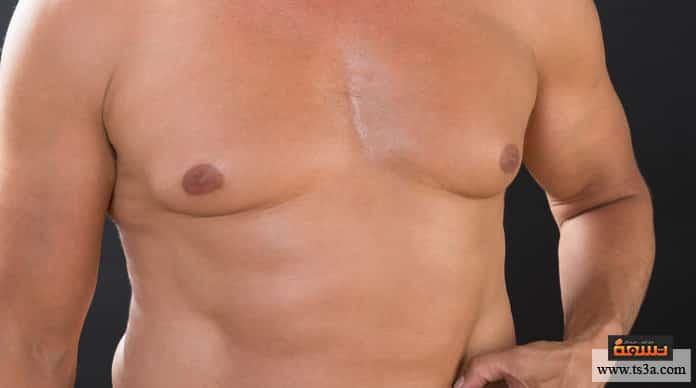 ترهلات الثدي عند الرجال