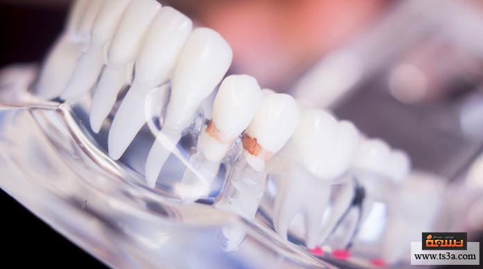 زراعة الأسنان ألم زراعة الأسنان