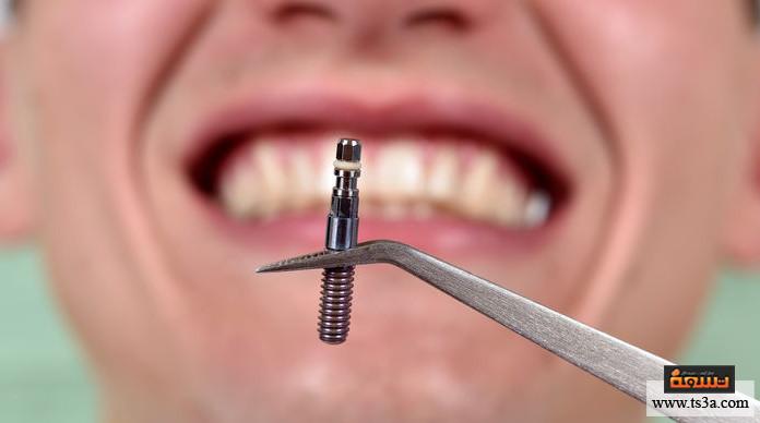 زراعة الأسنان زراعة الأسنان بدون جراحة