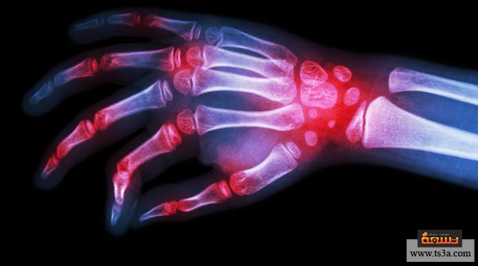 علاج الروماتيزم بالأعشاب علاج الروماتيزم بالزنجبيل