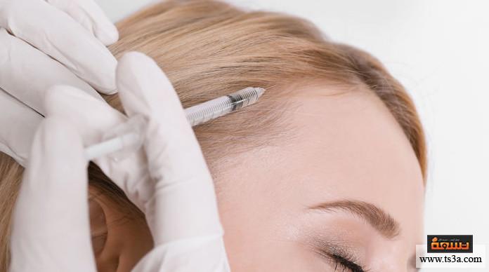 علاج تساقط الشعر بالفيلر أسعار فيلر الشعر