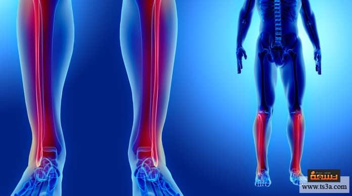 99a9abaf9e86a كيف تعالج كسر عظمة الشظية وما مدة التئام العظام فيها؟ • تسعة
