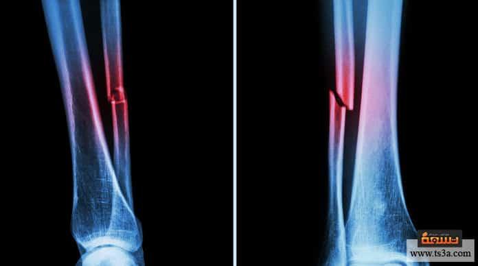كيف تعالج كسر عظمة الشظية وما مدة التئام العظام فيها تسعة