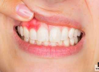 التهابات الفم