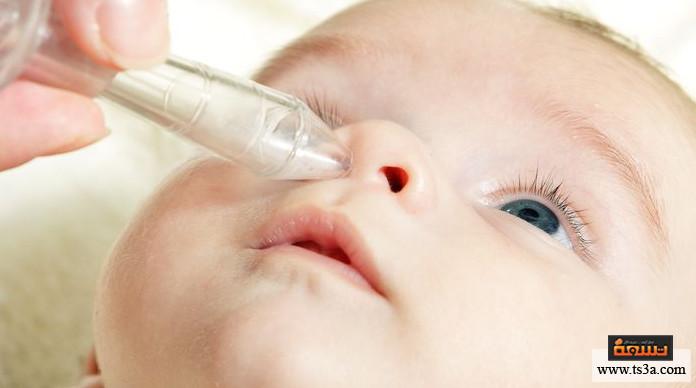 الخنفرة عند الرضع أسباب الخنفرة عند الرضع