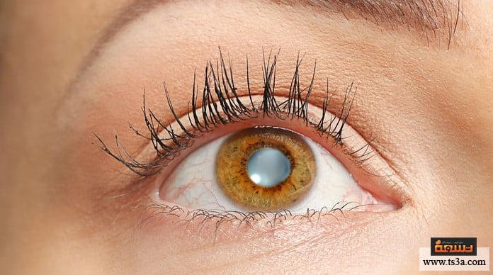 العين الكسولة أعراض العين الكسولة