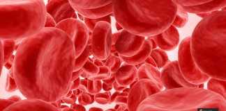انخفاض الصفائح الدموية للحامل