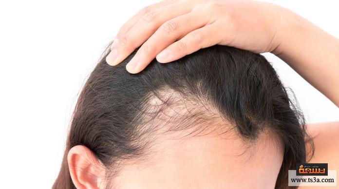 علاج تساقط الشعر بالأعشاب علاج تساقط الشعر الوراثي