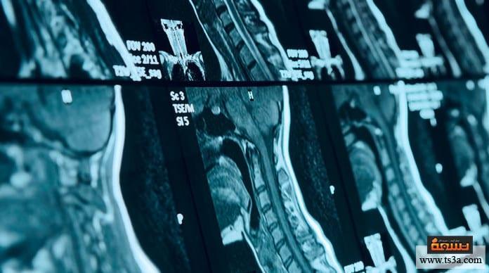 فقرات الظهر المضغوطة علاج ضغط الفقرات القطنية