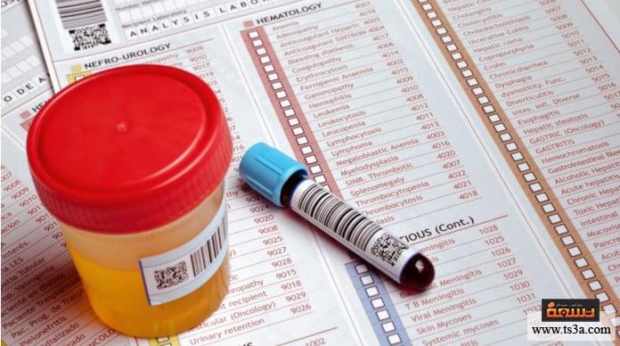 اختبارات المخدرات