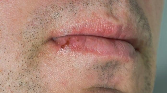 التهاب الشفاه التهاب الشفاه من الداخل