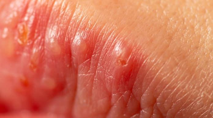التهاب الشفاه التهاب الشفة الزاوي