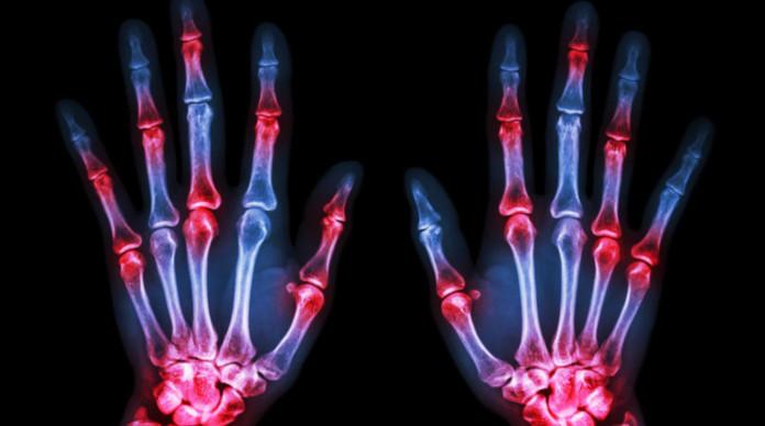 التهاب المفاصل الروماتويدي علاج التهاب المفاصل الروماتويدي بالأعشاب